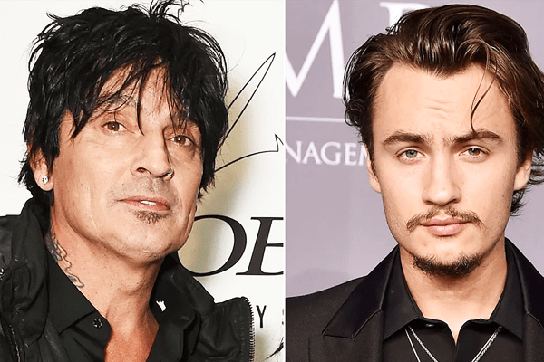 Tommy Lee's Son Punched and left him bloodied with a fat lip