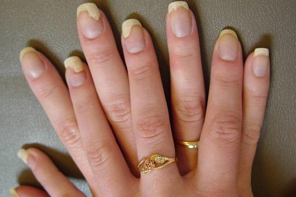 Nail Fungus | Recognizing, Avoiding And Being Safe