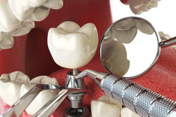 What You Desperately Need To Know About Dental Implants