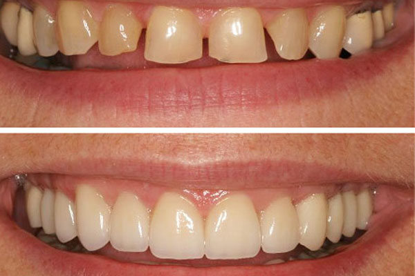 Top 5 Celebrities Who Had A Teeth Makeover. Watch The Before and After Images Of Their Teeth