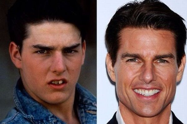 Tom Cruise teeth then and now