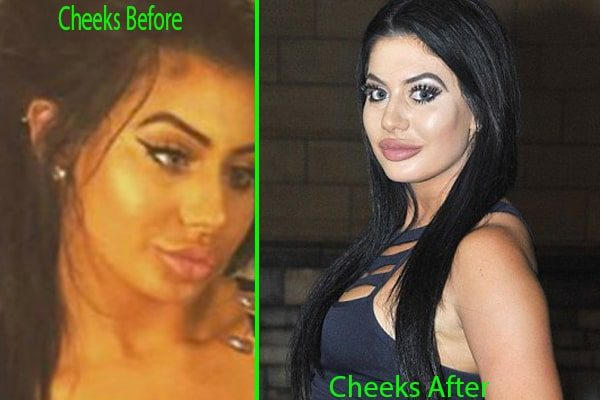 Chloe Ferry's cheeks filler